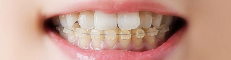 松舘矯正歯科