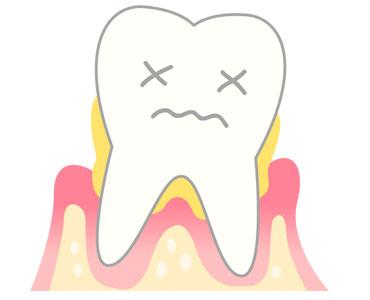 歯周病・予備軍